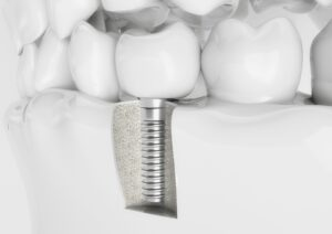 What's Missing: The Causes of Tooth Loss