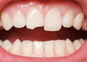 Best Treatments for Chipped Teeth